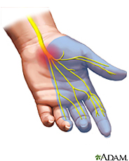 Carpal Tunnel Syndrome in Econdido, CA | Heilman