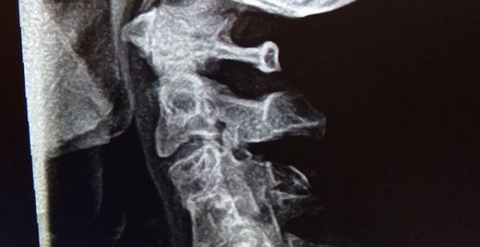 xray, Escondido Chiropractor, Neck pan, Congenital fusion